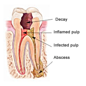 Root Canal Treatment Perth WA - Radiant Smiles Dental Care