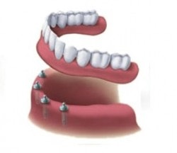All On 4 Dental Implant Cost