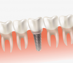 Dental Implants Perth Tooth