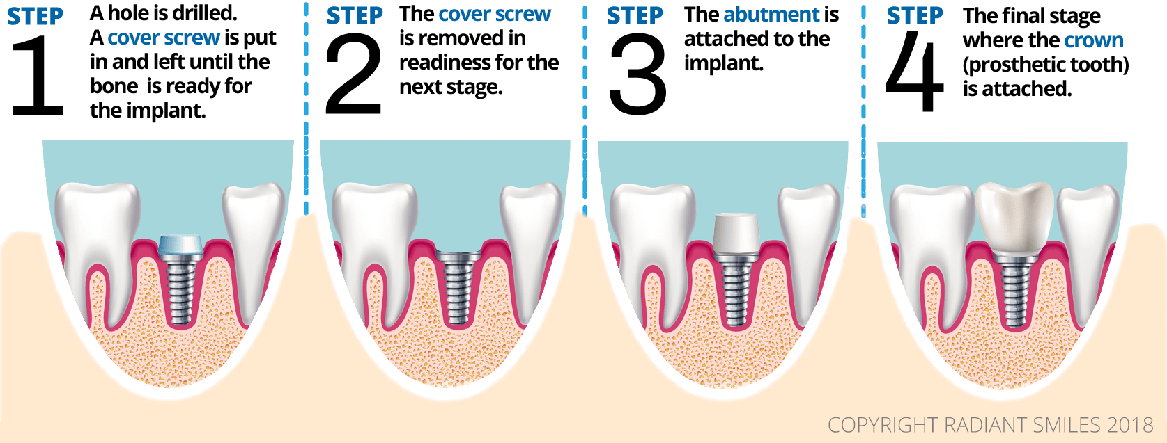 Dental Implants Process Explained
