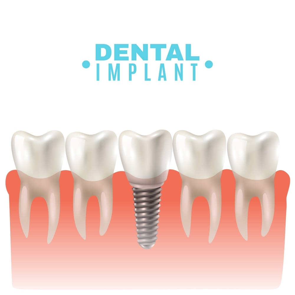 Dental Implants PERTH Cost – Best Affordable Tooth Implant
